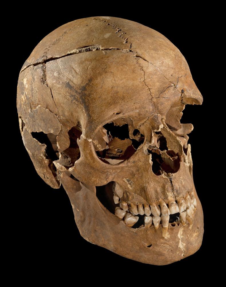Schädel aus Ihlow